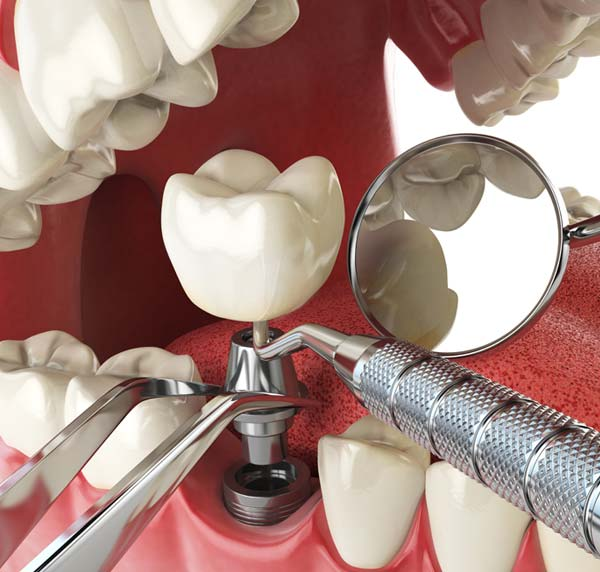 The Dental Implant Process