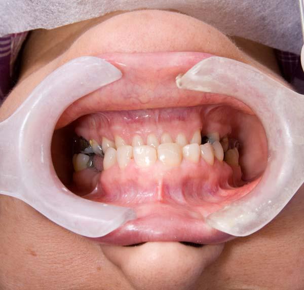 oral surgery service
